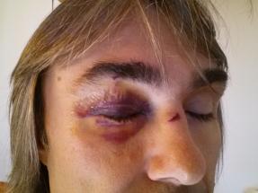 Poškozená zornička, přeražený nos...